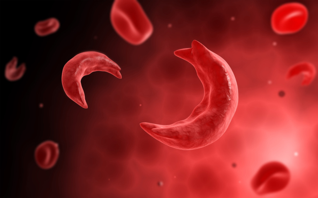 FDA approves new drug for sickle cell